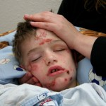 Alex under medical sedation